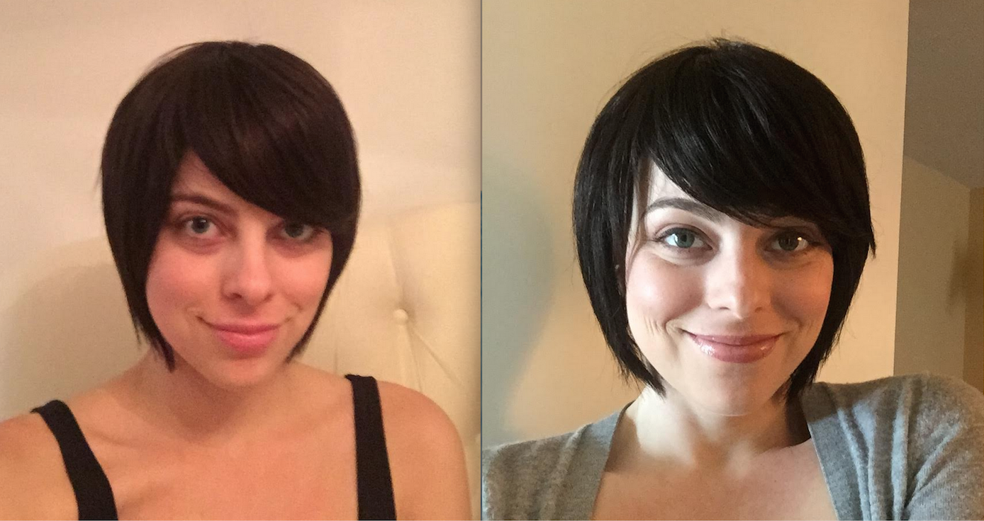 before after short 2